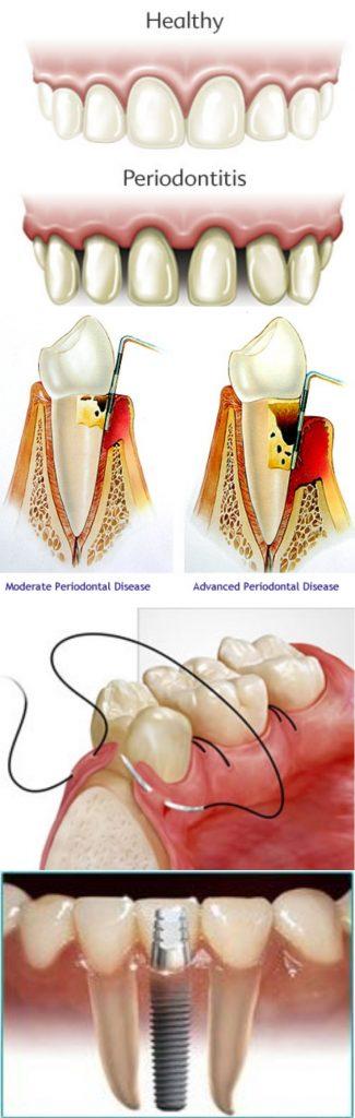 periodontal disease image mix