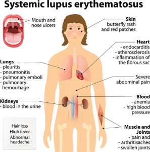 Systemic lupus erythematosu