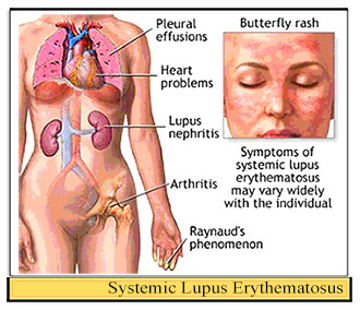 anatomy and physiology of systemic lupus erythematosus An instructive, highly-illustrated guide to the investigation, diagnosis and management of systemic lupus erythematosus (sle) and the related condition of sjögren's syndrome  illustrations, and animations to present core content of basic anatomy and physiology courses.