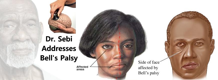 Los angeles facial paralysis doctor